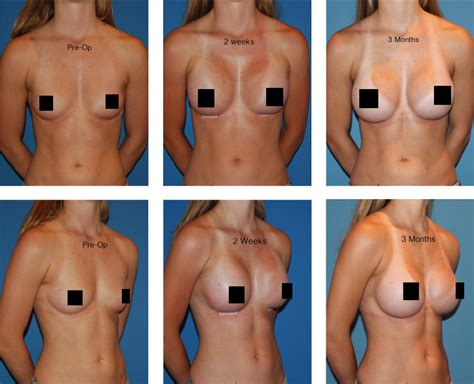 video of breast implant surgery jpg 723x586
